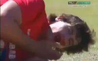 Cricketer Looses Two Teeth After Being Hit On Face